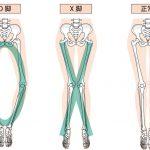 膝が痛い、、、そんな時に役立つアイテム!